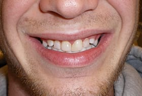 Smile with discolored teeth of uneven lengths