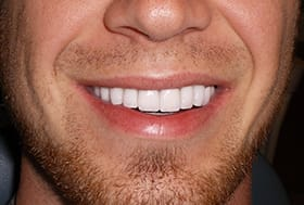 Flawlessly repaired smile with bright white teeth