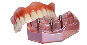 A model of an implant denture in Tallahassee.