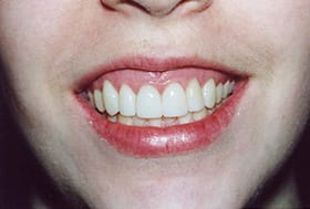 Lovely white smile after gum recontouring
