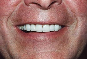 Man's smile with white healthy teeth