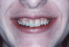 Smile with uneven teeth and gum line