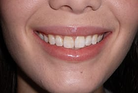 Woman's smile with very yellowed teeth