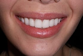 Brilliantly white gorgeous patient's smile