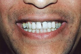 Man with lines around front dental crowns