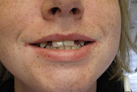 Smile with large gaps around front two teeth