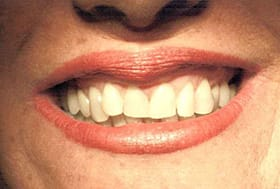 Woman's smile with crooked misshapen teeth