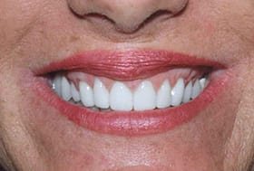 Woman's flawless bright white smile