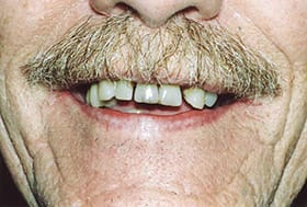 Older man's smile with uneven discolored teeth