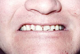 Teeth severely worn and discolored