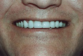 Man's smile with white aligned teeth